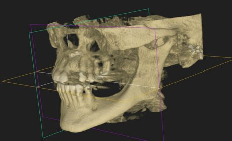 Looking at the Latest in Oral Radiology