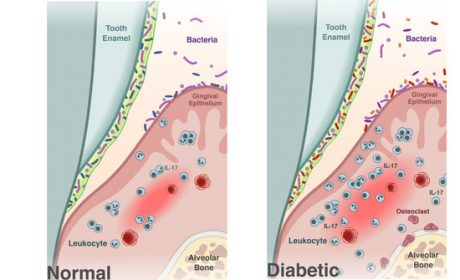 Diabetes Causes Shift in Oral Microbiome that Fosters Periodontitis, Penn Dental Study Finds