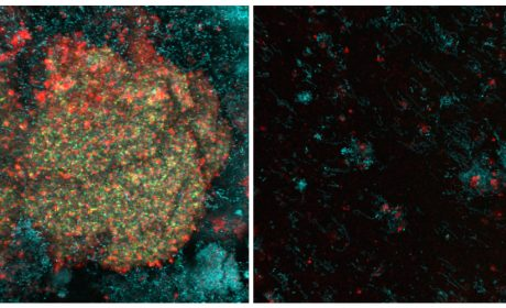 Dental Plaque Is No Match for Catalytic Nanoparticles