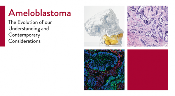 Ameloblastoma: The Evolution of Our Understanding and Contemporary Considerations