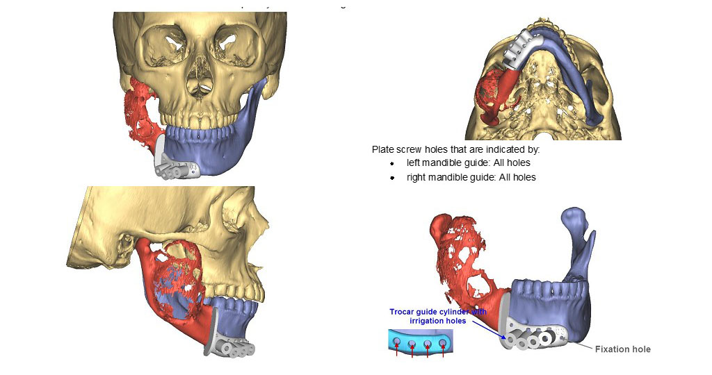3D images from virtual surgical planning to map out reconstruction of the mandible after tumor resection (Le lab)