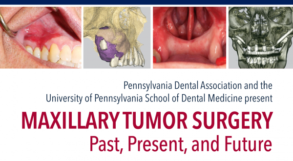 Maxillary Tumor Surgery - Past, Present and Future