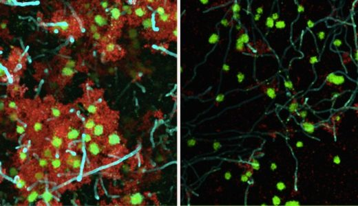 Study Targets Yeast-Bacterial Interactions in Early Childhood Caries